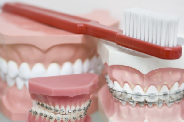 Need Braces? Options Abound! Image